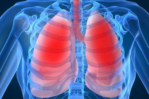 biến chứng bệnh viêm phổi