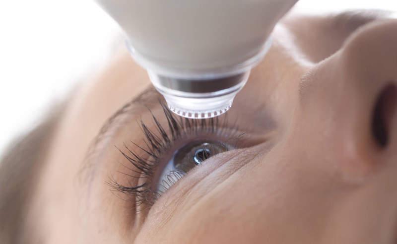 Biến chứng nguy hiểm khi áp dụng phương pháp phẫu thuật mắt bằng Lasik