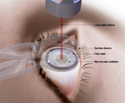 Tìm hiểu về phương pháp phẫu thuật mắt bằng Lasik