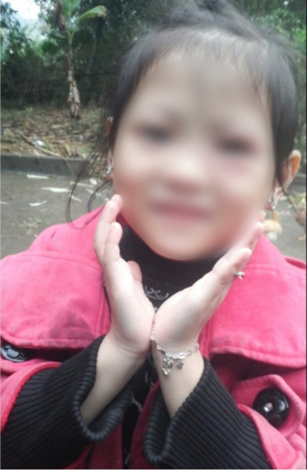 PHÚ THỌ: Bé gái suýt mất mạng chỉ vì nốt mụn nhỏ trên mặt 2