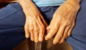 Clofazimin - Thuốc điều trị bệnh phong 1
