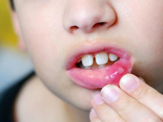 Những lưu ý khi sử dụng thuốc nhiệt miệng