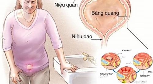 Bác sĩ chuyên khoa giải đáp: Đau bụng dưới bên trái dấu hiệu bệnh gì 2