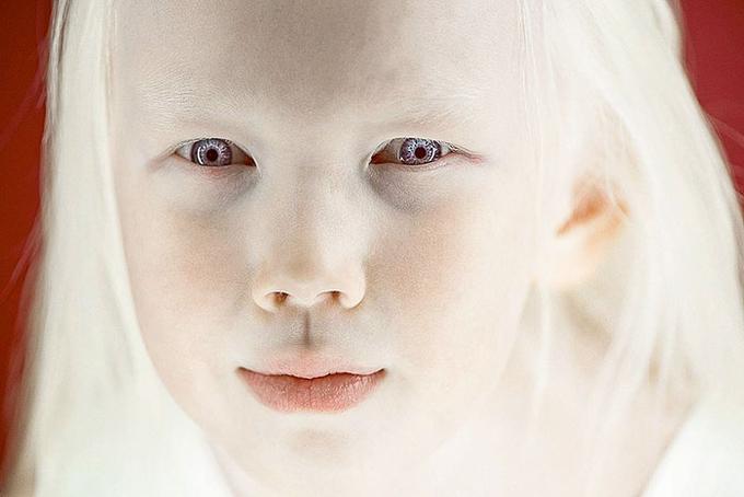 Bệnh bạch tạng - Nguyên nhân và những dấu hiệu thường gặp 1