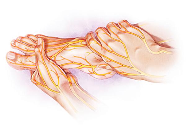 Nguyên nhân mắc bệnh thần kinh ngoại biên 2
