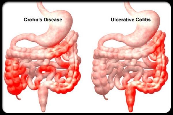 triệu chứng bệnh crohn
