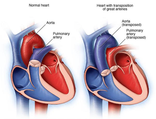 Tổng hợp thông tin liên quan đến bệnh còn ống động mạch 2