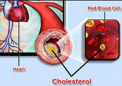 Cholesterol là gì? Giải pháp làm giảm lượng cholesterol 1