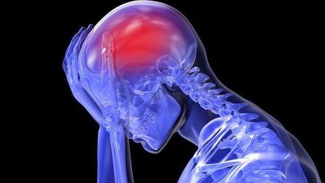 Phình động mạch não là gì? Những triệu chứng nhận biết bệnh 1