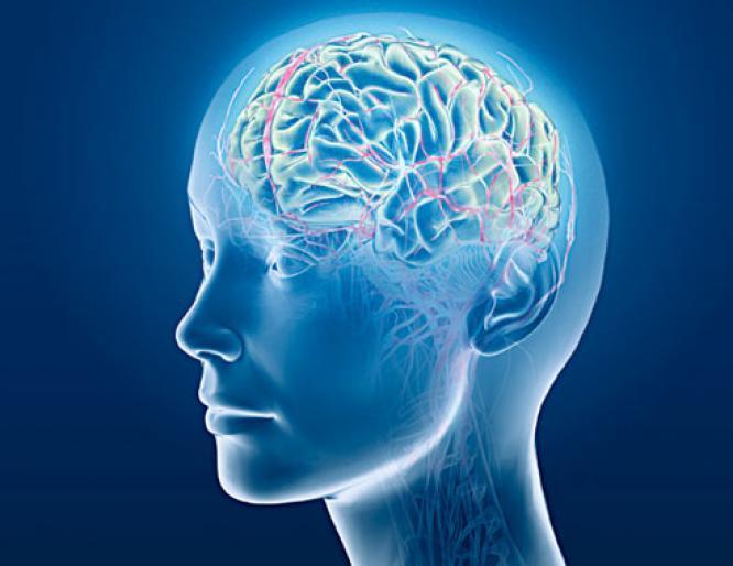 Phình động mạch não là gì? Những triệu chứng nhận biết bệnh 2