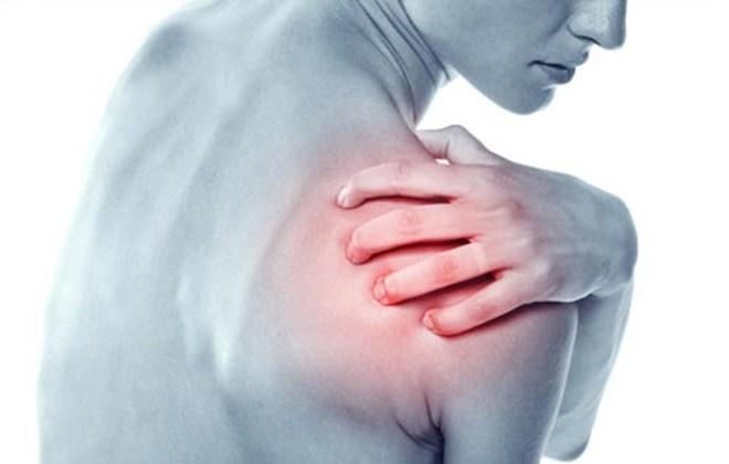 Hội chứng đau vai và phương án điều trị cải thiện