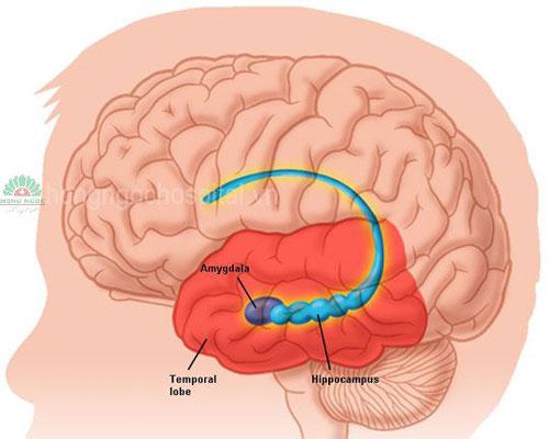 Triệu chứng & Những dấu hiệu nhận biết bệnh viêm não 2