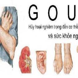 Tết đến, phòng tránh bệnh gout như thế nào?