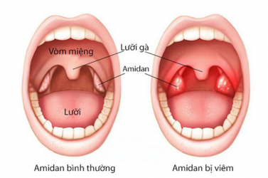 viem-amidan-nguyen-nhan-trieu-chung-phuong-phap-dieu-tri-benh